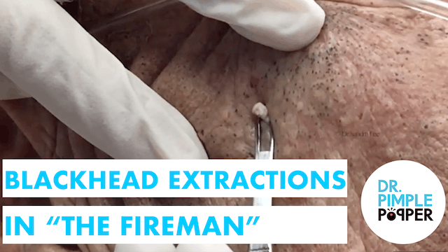 """The Fireman"" returns: Blackhead Extr..."