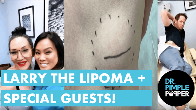 Larry the Lipoma + Special Guests