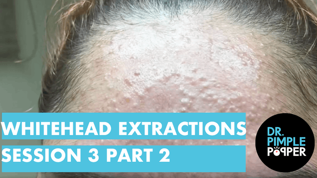 Whitehead Extractions TNTC Part 2