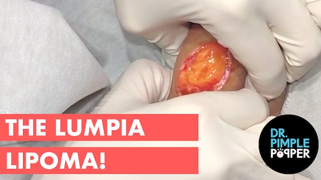 The Lumpia Lipoma