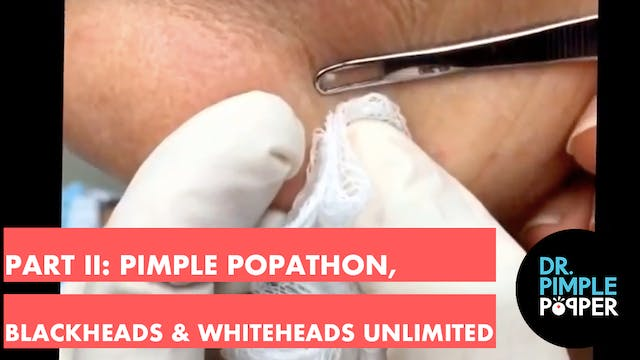 Part II: Pimple Popathon. Blackheads ...