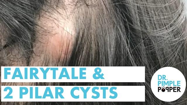 Fairytale & 2 Pilar Cysts