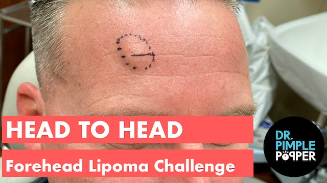 Head to Head: Forehead Lipoma Challenger 1