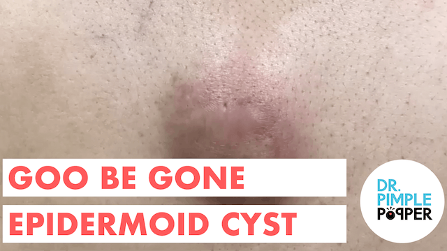 Goo Be Gone Epidermoid Cyst