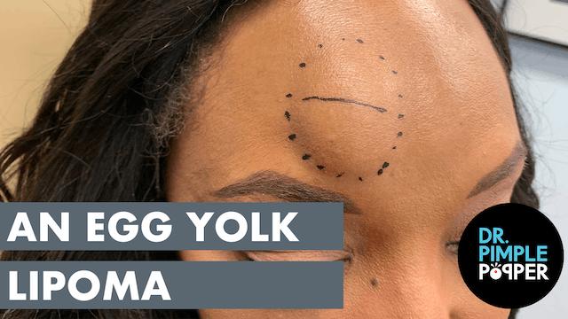 An Egg Yolk Lipoma