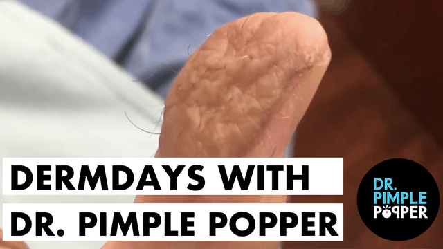 Derm Days with Dr. Pimple Popper: Thu...