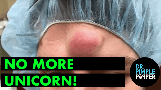 No More Unicorn, with Dr Pimple Popper