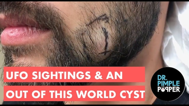 UFO Sightings: An Out of This World Cyst