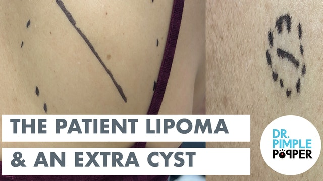 The Patient Lipoma & An Extra Cyst!