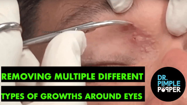 Removing Different Types of Growths