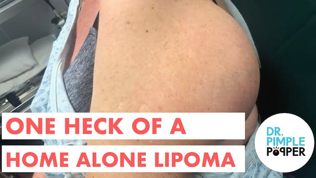 One Heck of a Home Alone Lipoma