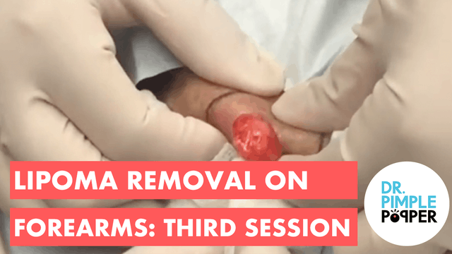 Lipoma removal on forearms: Third Ses...