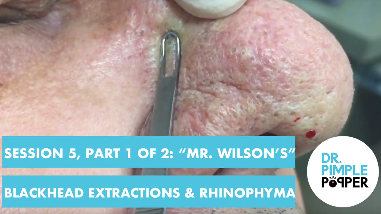 Session 5 Part 1 Of 2 Mr Wilson S Blackhead Extractions Rhinophyma Dr Pimple Popper