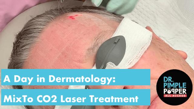 MixTo CO2 Laser Treatment