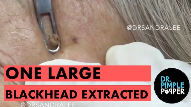 One large blackhead extracted