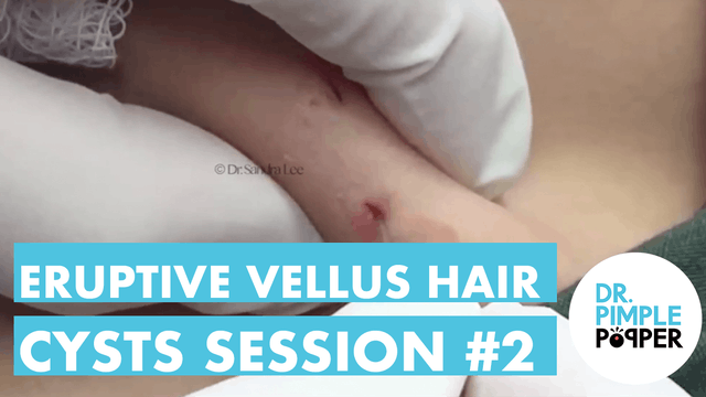 Eruptive Vellus Hair Cysts Session #2