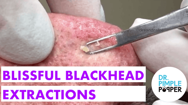 Blissful Blackhead Extractions