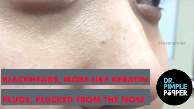 Blackheads, More Like Keratin Plugs