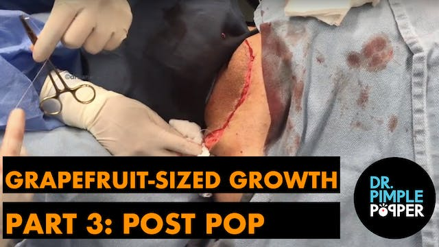 Grapefruit Sized Growth, Part 3: Post...