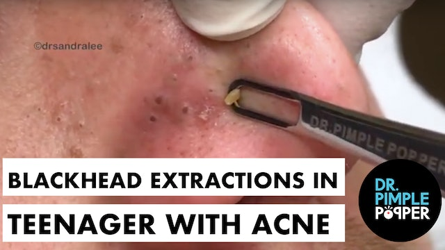 Blackhead Extractions in a Teenager