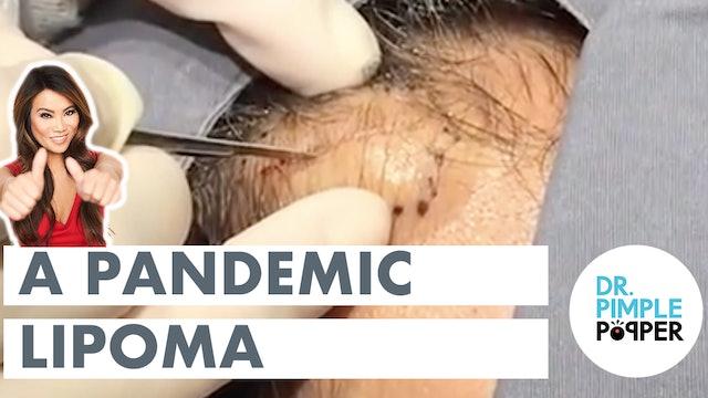 A Pandemic Lipoma