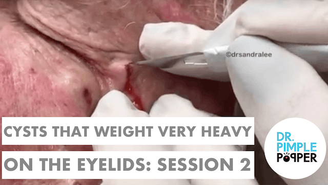 Cysts that weigh very HEAVY on the EY...