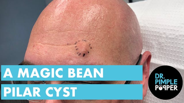 The Magic Bean Pilar Cyst