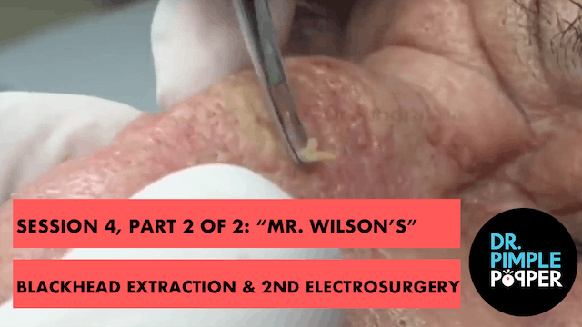 "Session 4, Part 2 of 2: ""Mr Wilson's""..."
