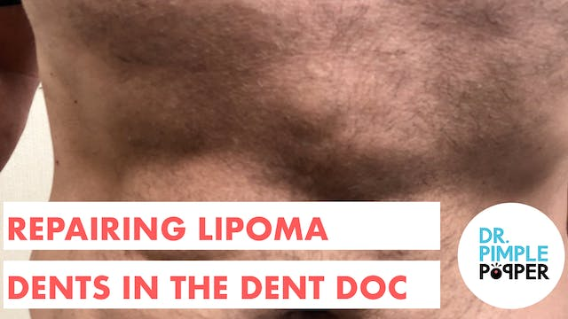 Repairing Lipoma Dents in the Dent Doc