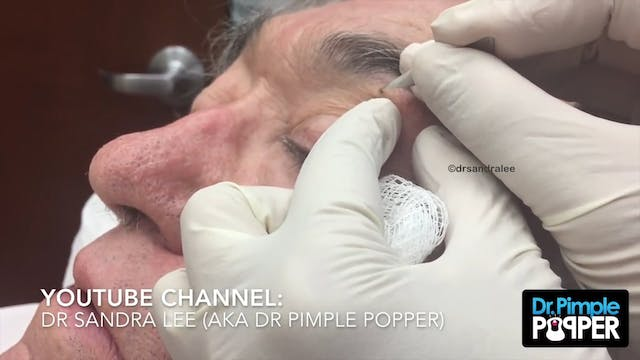 One blackhead on the neck extracted - Bedtime Blackheads