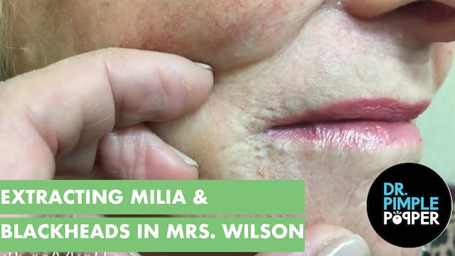 "Extracting milia & blackheads on ""Mrs..."