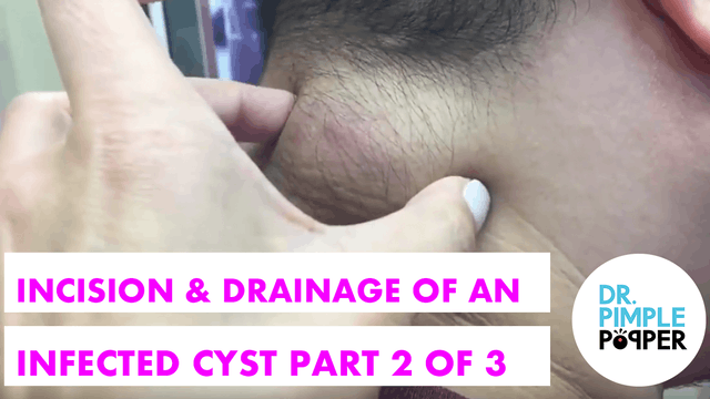 Incision & Drainage of an Infected Cy...