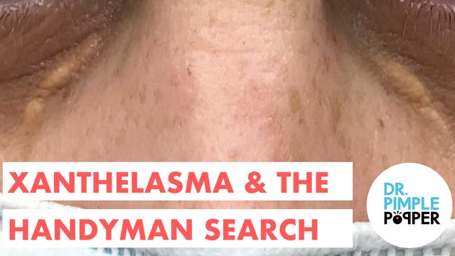 Xanthelasma & The Search for a Handyman