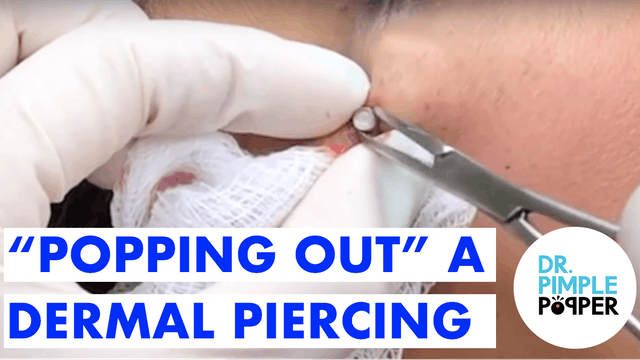 """Popping Out"" a Dermal Piercing"