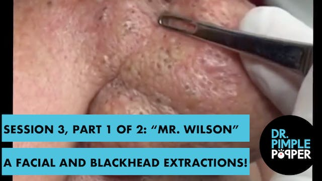 "Session 3, Part 1 of 2: ""Mr Wilson"" A..."
