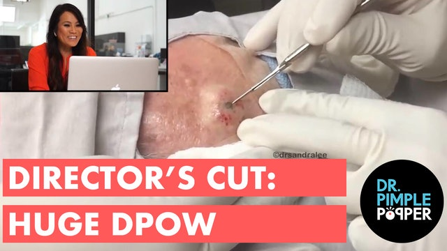 BTS Director's Cut: HUGE DPOW