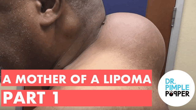 A Mother of a Lipoma (Part 1)