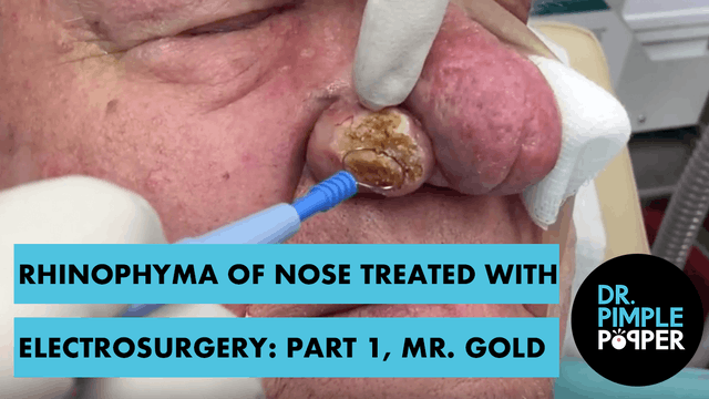Rhinophyma of Nose treated with Electrosurgery: Part 1, Mr Gold