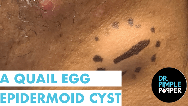 A Quail Egg Epidermoid Cyst