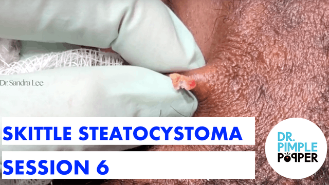 YES, More Skittle Steatocystoma - Ses...
