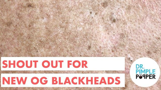 New OG Blackheads