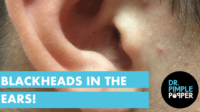 Blackheads in the Ears! Extractions b...
