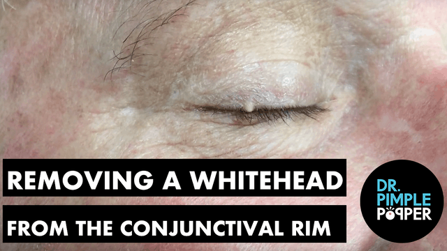 Removing a Whitehead from the Conjunctival Rim