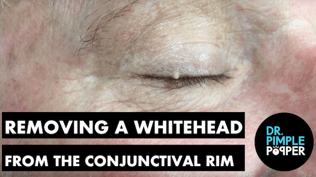 Removing a Whitehead from the Conjunc...