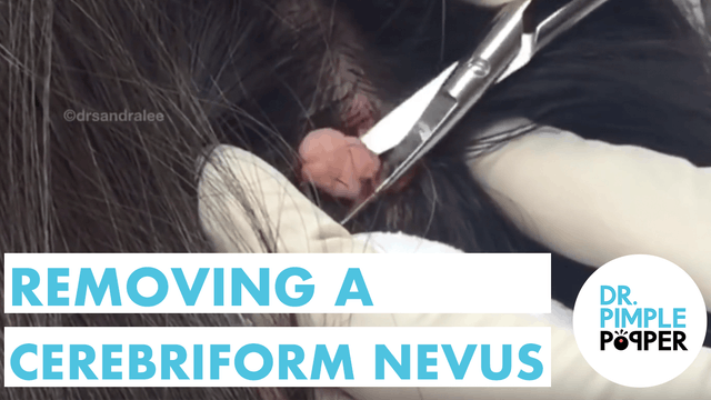 Dermatology: Removing a Cerebriform Nevus