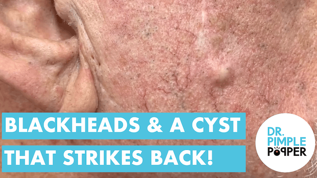 BLACKHEADS & The Cyst that Strikes Back