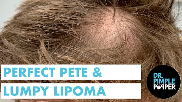 Perfect Pete & Lumpy Lipoma