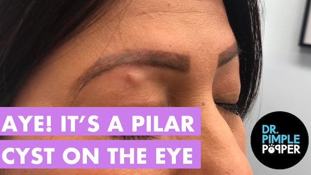 Aye! It's a Pilar Cyst on the Eye