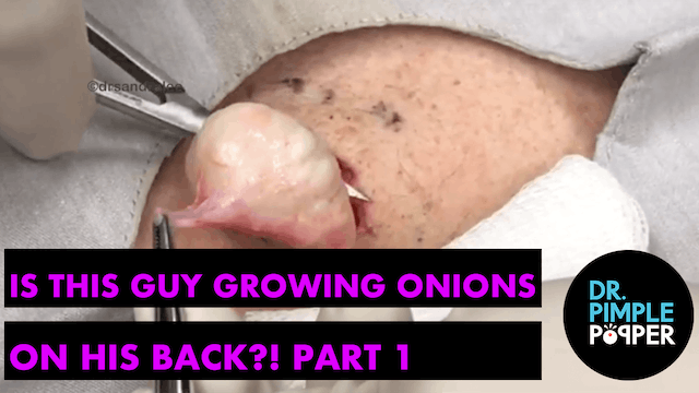 Is this guy growing onions in his bac...