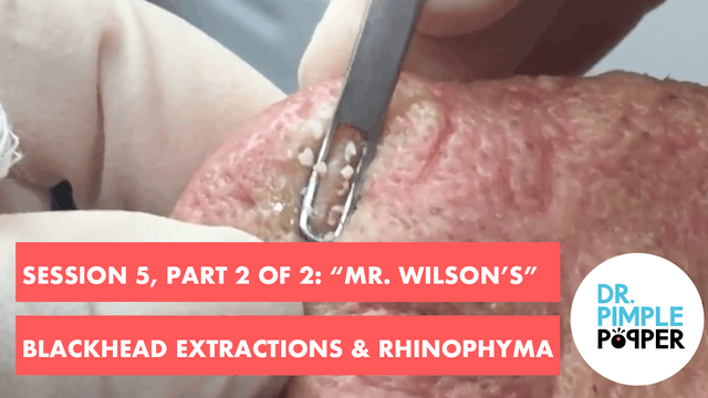"""Mr Wilson's"" blackhead extractions, ..."